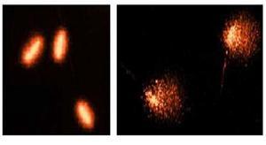 genotox spermatozoïdes gammare (essai Comète)